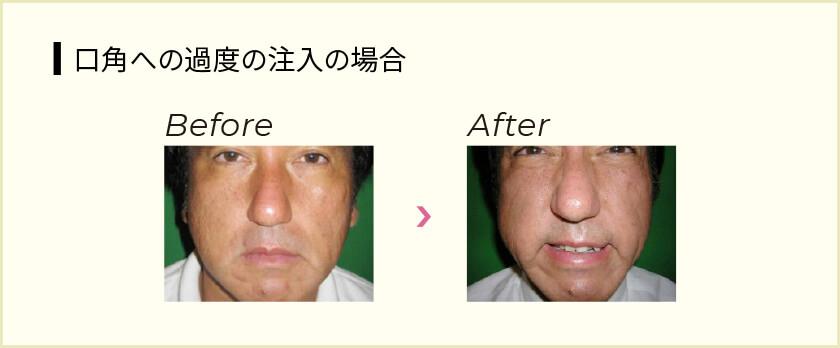 失敗 鼻 ヒアルロン酸