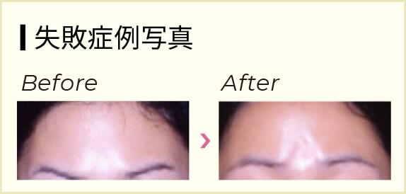 かゆい 眉間 顔のかゆみや赤い腫れ、原因は乾燥やアレルギー?意外な病気の可能性も