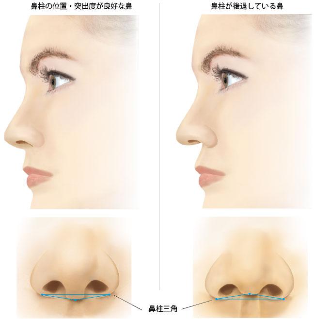 が ない 鼻筋 鼻の整形(鼻を高く・小さく)鼻筋・鼻根、鷲鼻改善の整形術なら品川美容外科【全国版】